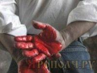 руки_кровь