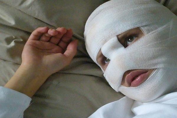 женщина с забинтованной головой,голова в бинтах,