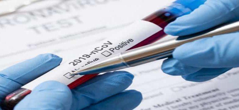 Во Владимирской области на 27 апреля подтверждено 43 новых случая заражения коронавирусом